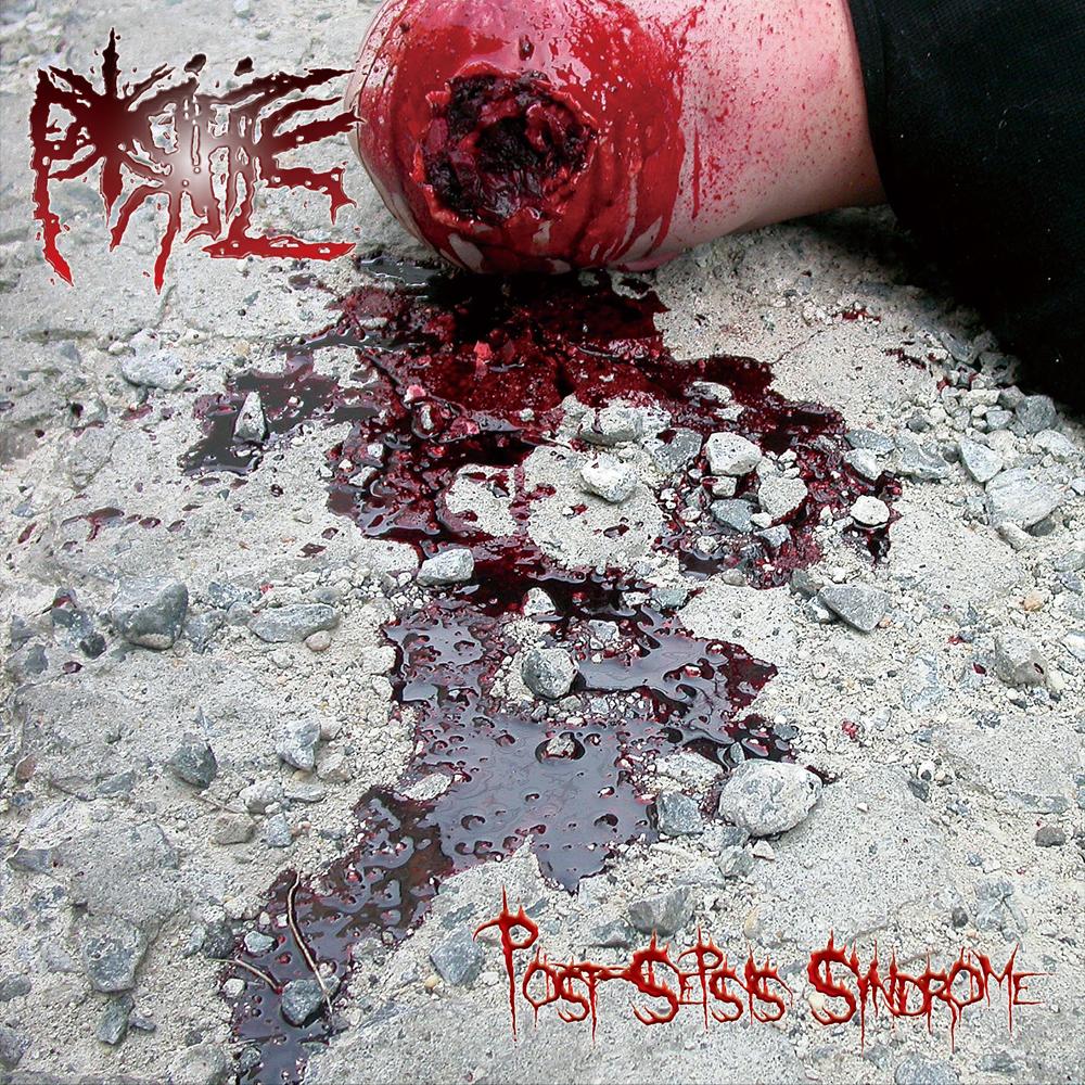 PORIFICE / ポリフィス / POST-SEPSIS SYNDROME / ポスト-セプシス・シンドローム